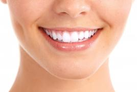 Apparatus teeth whitening with the Beyond Polus system from 4 to 10 from